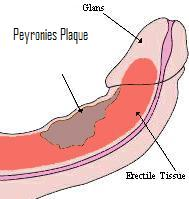 peyronies curvature